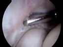 Arthroscopic Treatment of Lateral Epicondylitis