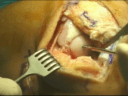 Fresh Osteochondral Allograft Transplantation of LFC after Meniscus Transplantation