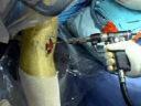 High Tibial Osteotomy (no audio)