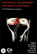 Meniscal Allograft Transplantation: A Comprehensive Review (2015)