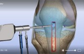 Torn ACL – Bone-Patellar Tendon-Bone Graft